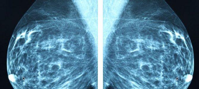pierderea în greutate și mamografia anormală